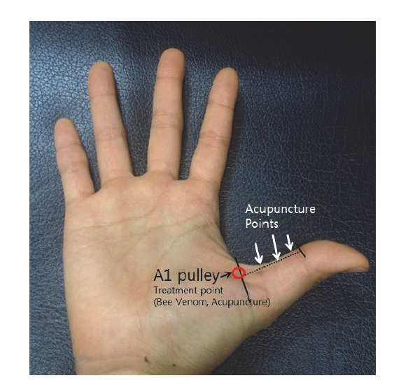 A Case Report on Patient with Trigger Thumb Improved by Complex ...